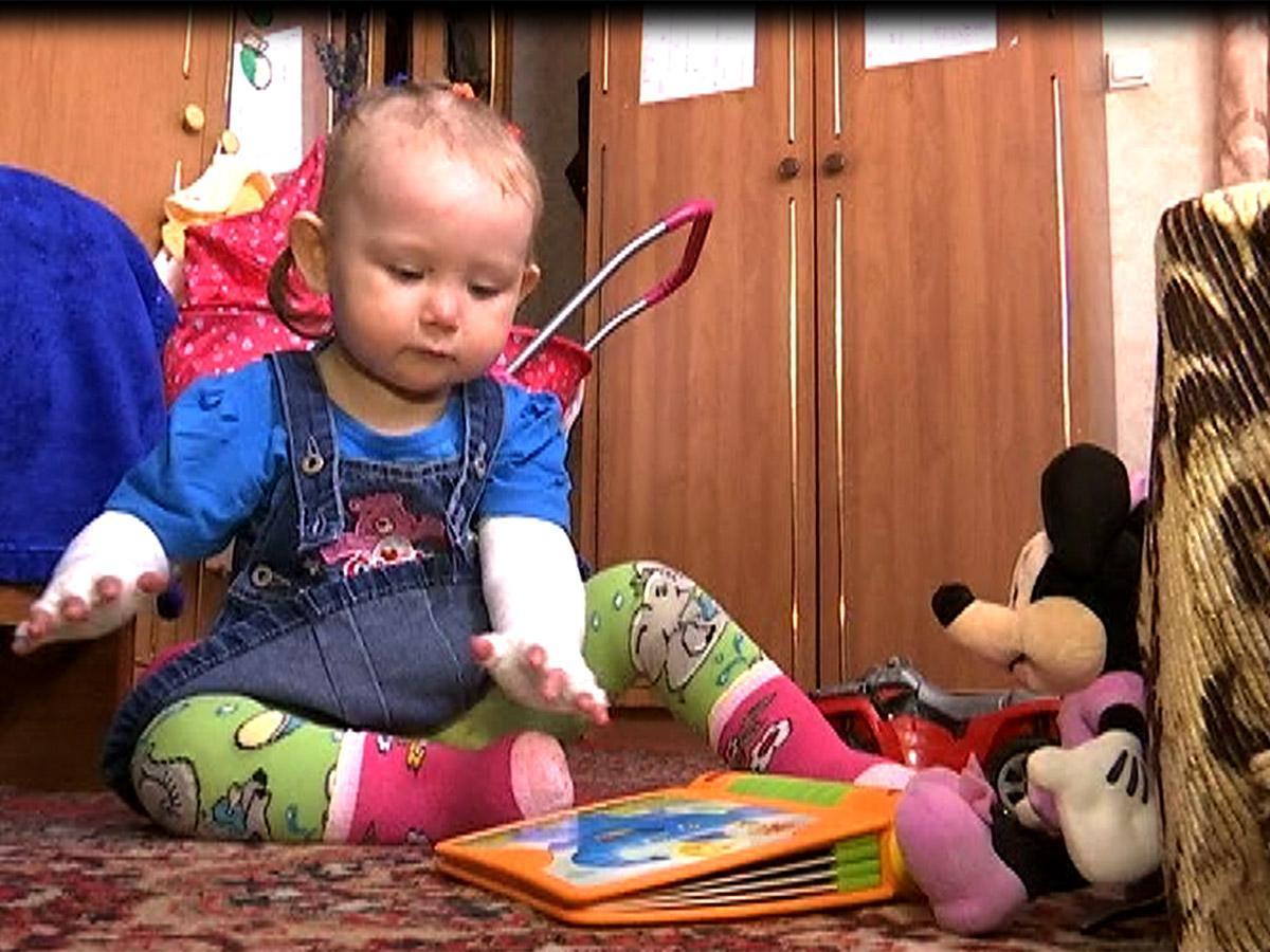 Жителей Кубани попросили помочь девочке с синдромом «бабочки»
