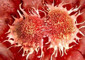 Кубань вошла в список регионов РФ с наибольшей распространенностью рака