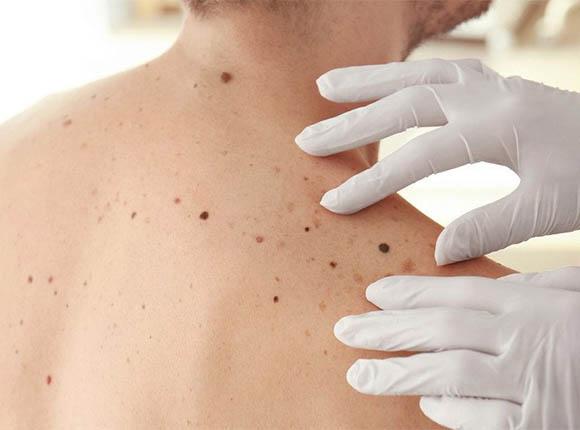 Российские ученые придумали мазь от рака кожи — меланомы