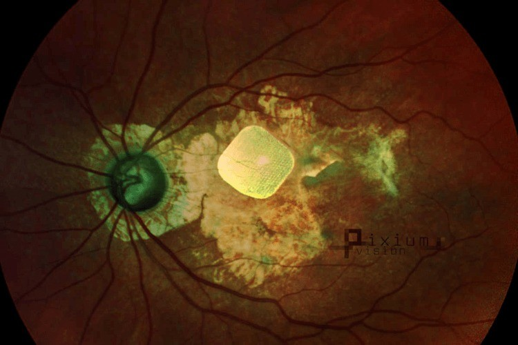 бионичский глаз