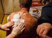 В Новороссийске парня ударили ножом в спину