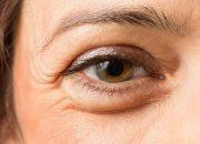 Мешки под глазами опасны — внутри них мигрень и апатия