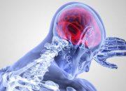 Ученые придумали «мозгового червя» для лечения инсультов