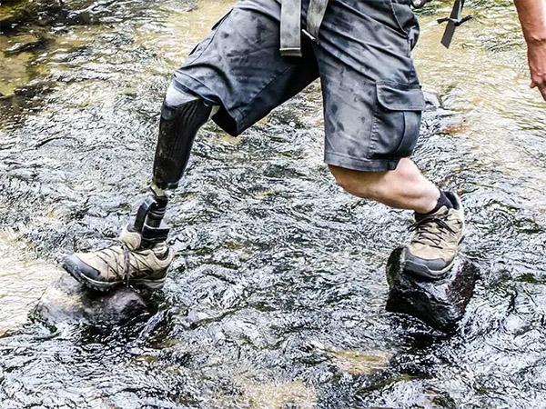 Бионический протез ноги передает ощущения ходьбы, утверждают ученые