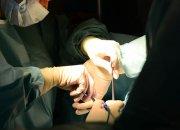 На Кубани начали проводить операции на желудке по новейшей методике