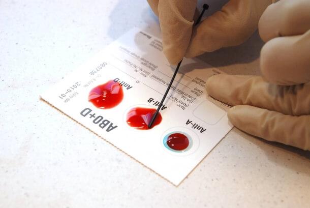 Группа крови: ученые вычислили, кому рак не грозит