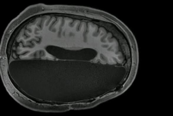 Жить без части мозга: оказывается это возможно