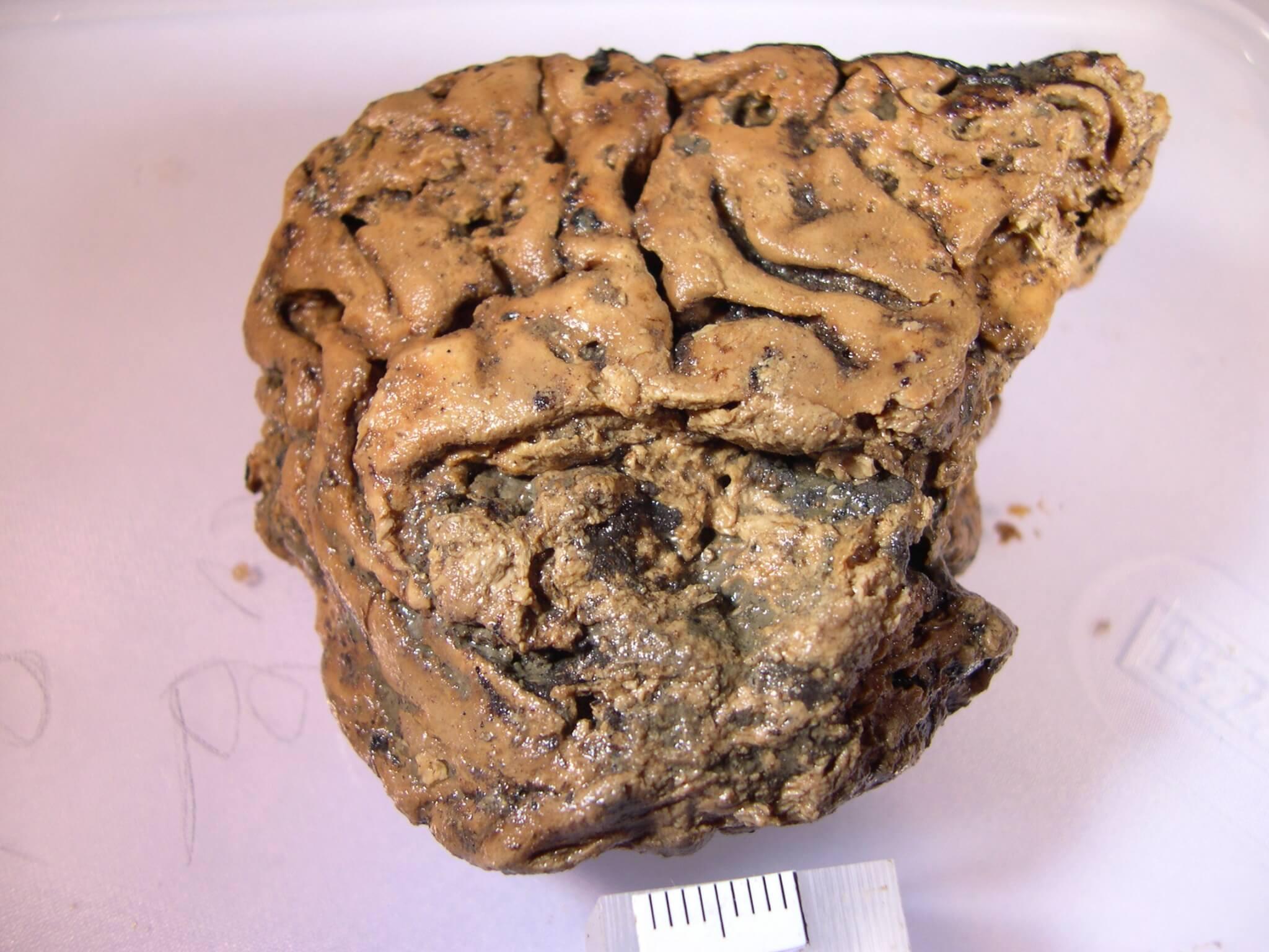 древний человек, мозг