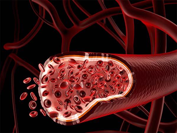 кровеносные сосуды, женщин