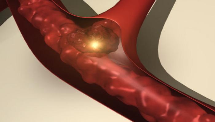 отрыв тромба, варикозное, расширение, вен