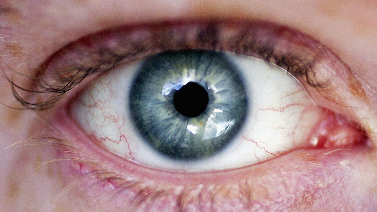 Медики: глазной грипп опасен, и от него нет лекарств