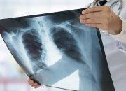 Туберкулез вчера и сегодня: что нужно знать каждому?