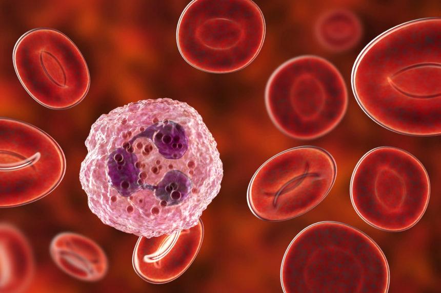 лейкемия, рак крови, лейкоциты
