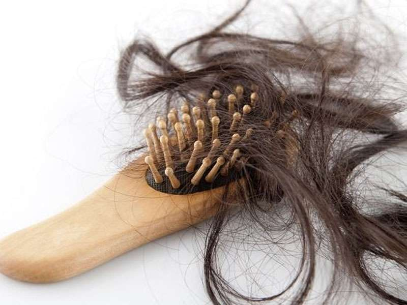 выпадение волос, волосы, мужчин, причины облысения