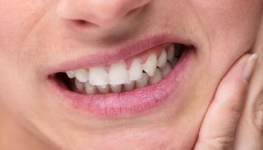 зубная эмаль, зубной налет, зубы