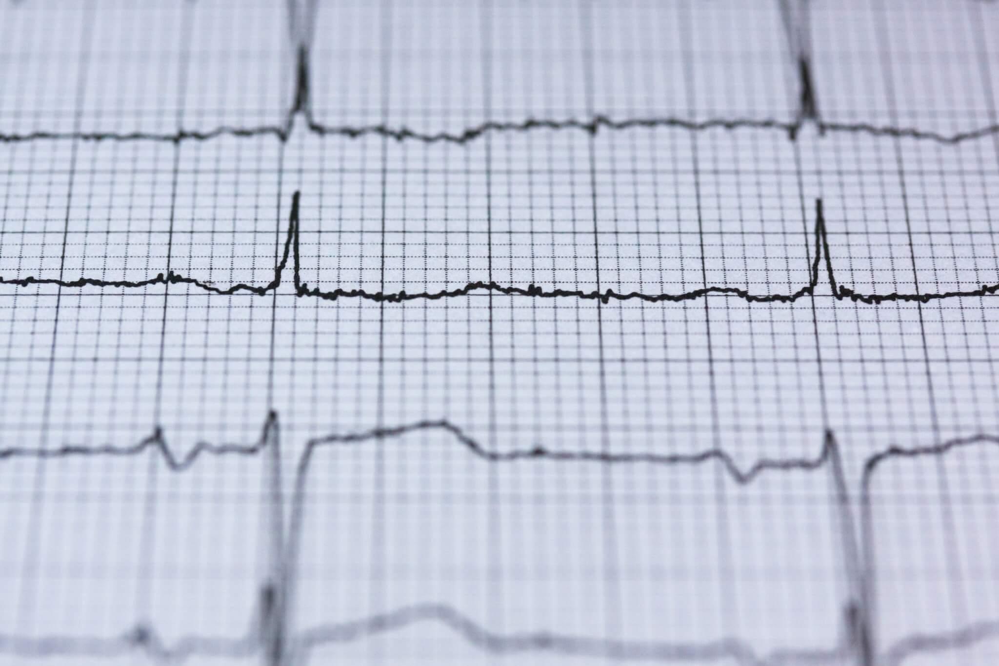 Учащенный пульс: что делать при повышенном сердцебиении