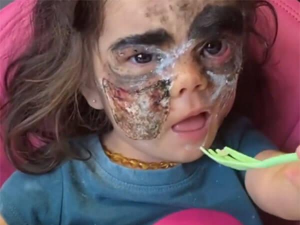 Девочке с «маской Бэтмена» удалили большую часть родимого пятна на лице