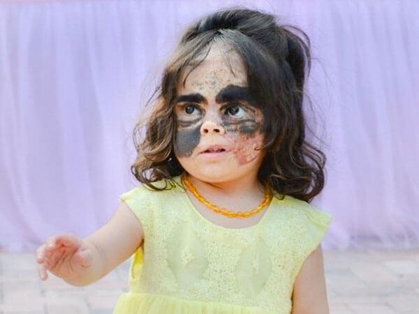 Девочке с «маской Бэтмена» сделают четвертую операцию в Краснодаре