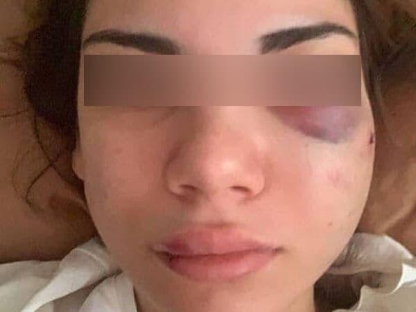 В Краснодаре парень избил девушку в трамвае из-за нецензурных слов