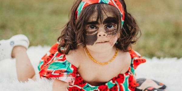 Девочке с «маской Бэтмена» сделают вторую операцию по пересадке кожи